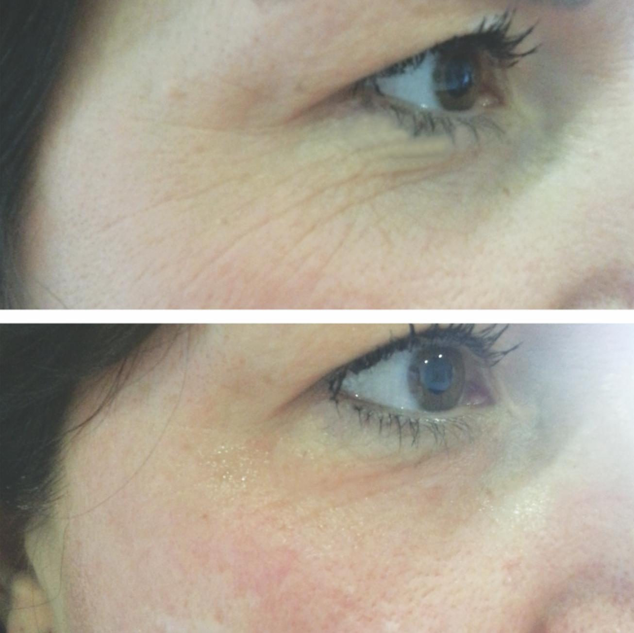 Finishing Touches Group Meso+ Meso Skin treatment