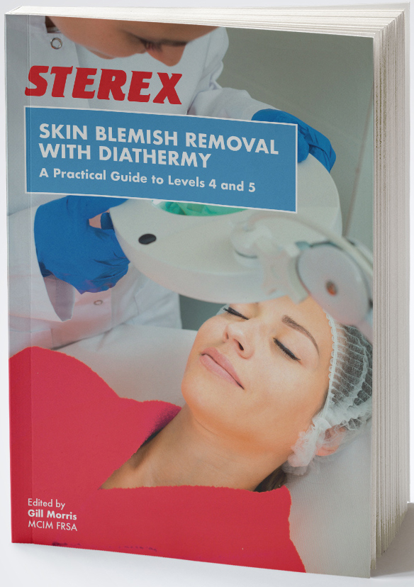 Skin Blemish Removal with Diathermy: A Practical Guide to Level 4s and Level 5